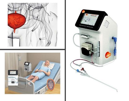 Traiter le cancer de la vessie – dispositif BRS Combat Medical